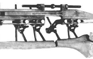 Аппарат стержневой д/удлинения длиных трубчатых костей КСАУ