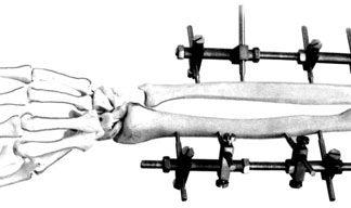 Аппараты для мелких трубч.костей КУД-САИ-01